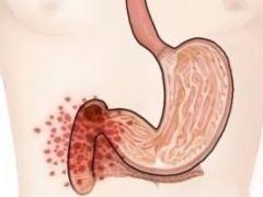 Особенности течения и лечения хронического дуоденита