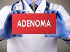 Как проявляется аденома печени и чем она опасна?