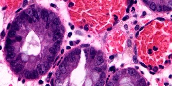Лечение хронического колита кишечника