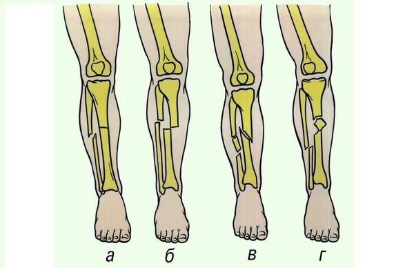 Переломы костей
