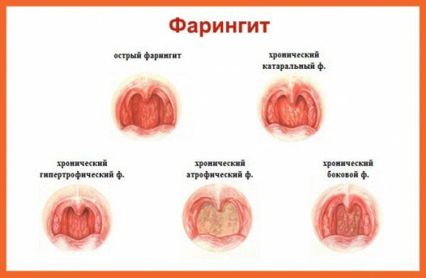 высокая температура без симптомов у ребенка