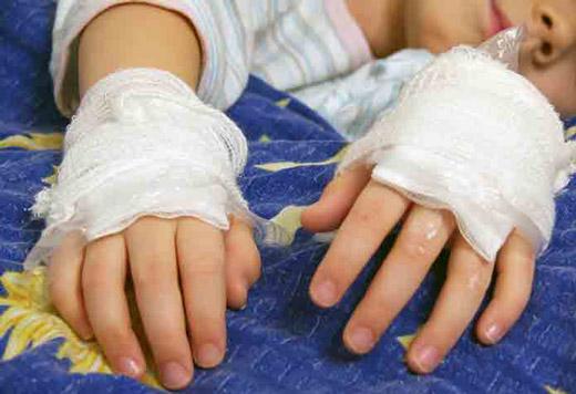 ожог обеих рук у ребенка