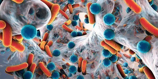 Диарея бактериального генеза