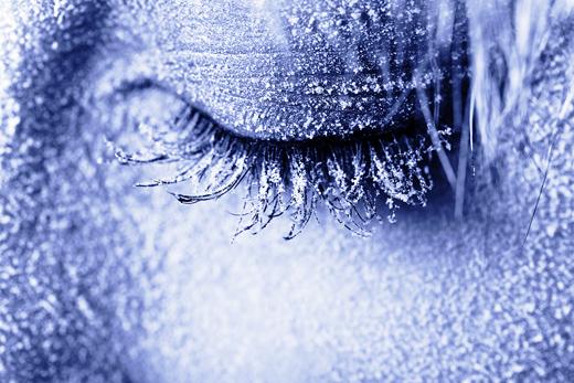 обмороженное лицо