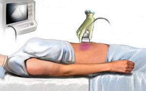 Осложнения острого панкреатита: диагностика