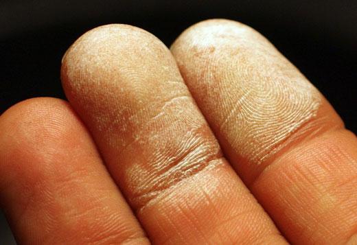 Ожог пальцев на руке