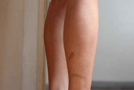 шрам на правой ноге