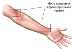 chesotka-simptomy-foto