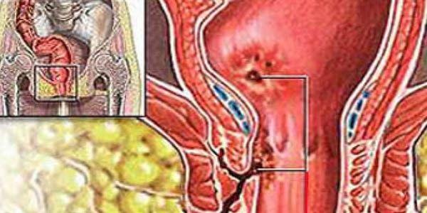 Свищ при парапроктите: классификация, диагностика, лечение