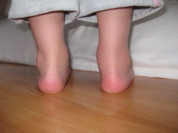 после высокой температуры у ребенка болят ноги