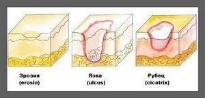 Лечение хронической язвы желудка