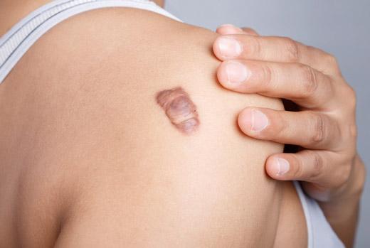 келоидный рубец на плече