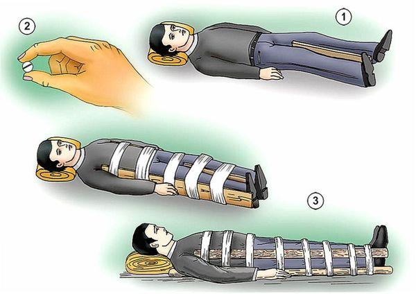 Оказание первой помощи при открытом переломе бедра
