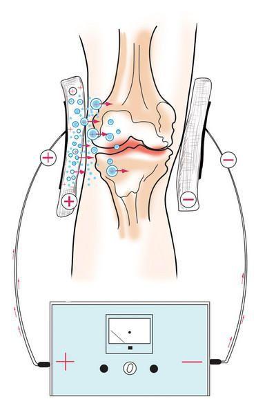 Электрофорез при заболеваниях суставов и костей
