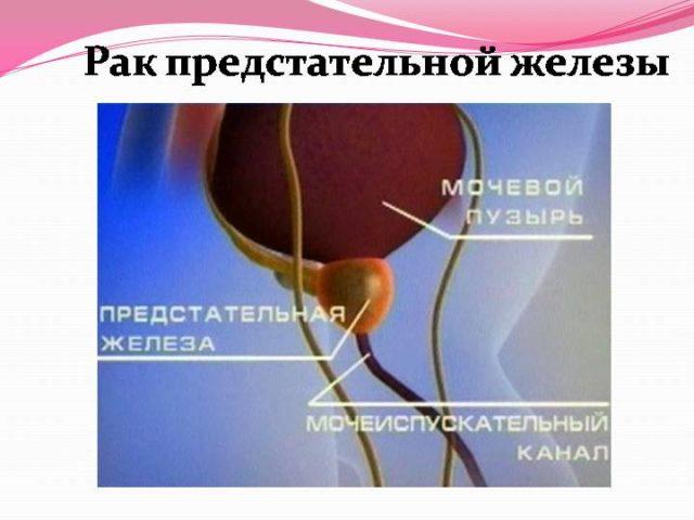 В международной классификации болезней рак простаты указан под шифром С 61
