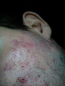 ospovidnoe-akne