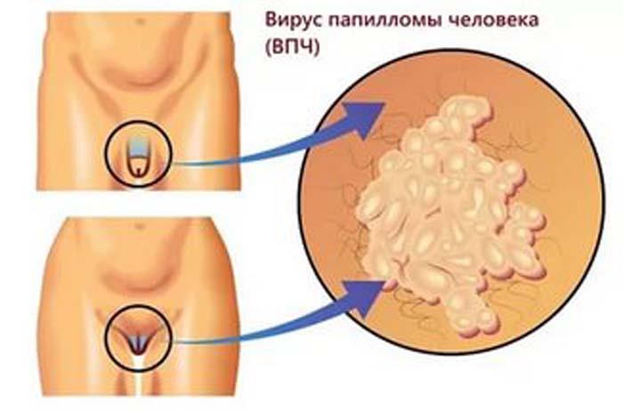 Насколько опасны генитальные кондиломы: причины появления и лечение