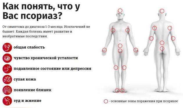 psoriaz-diagnostika