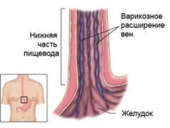 Что означает диагноз