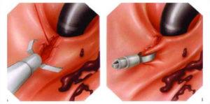 Первая помощь при обострении язвы желудка
