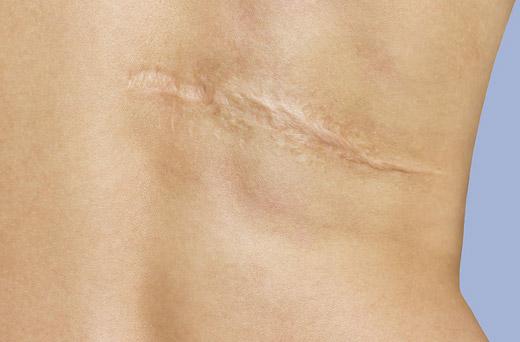 большой шрам на теле