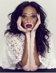 vinni-harlou-vitiligo-foto