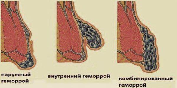 Комбинированный геморрой - симптомы и лечение