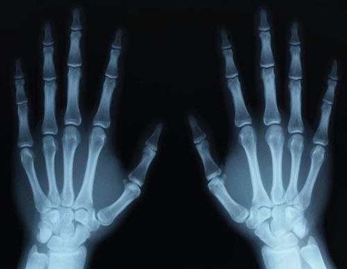 Рентген пальцев руки