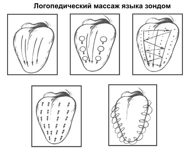 Схема логопедического массажа языка зондом