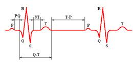 Типичная полоса ритма электрической активности сердца
