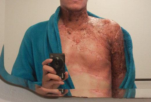 Мужчина с ожогами грудной клетки