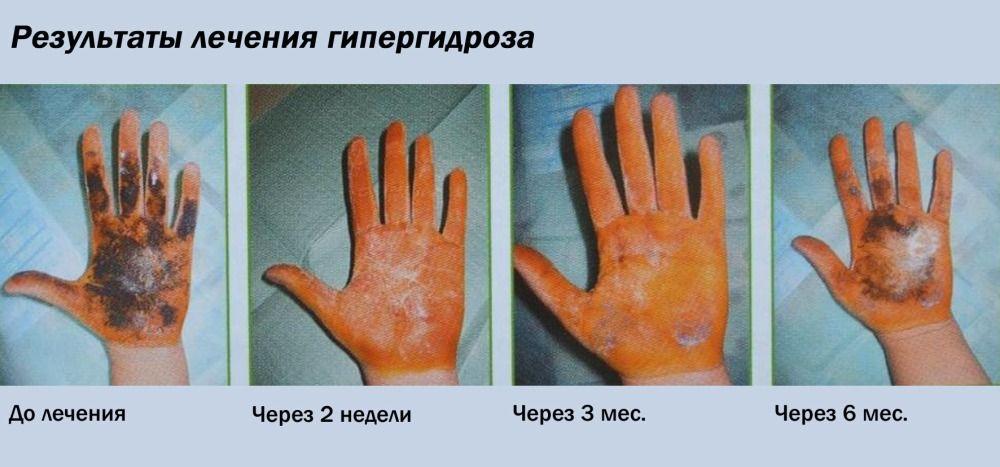 Результаты лечения потливости ладоней