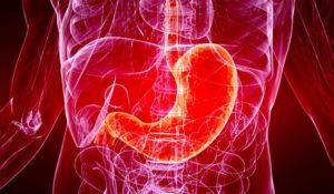 Острый гастрит: симптомы и причины