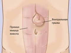 Чем опасна вентральная грыжа передней брюшной стенки?