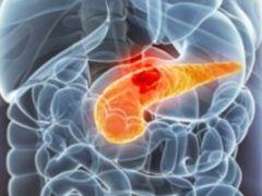 Рак поджелудочной железы: первые признаки и методы терапии онкологии