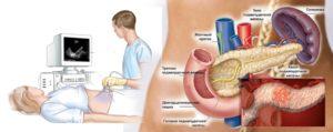 Как диагностировать панкреатит: инструментальные методы