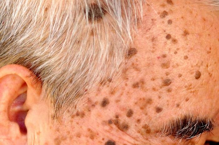 Причины, симптомы и лечение вирусных бородавок