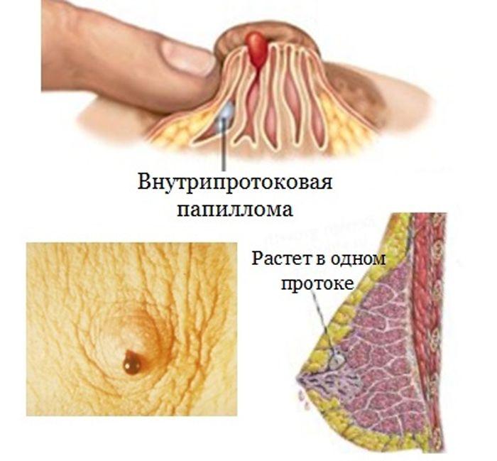 vnutriprotok-papilloma1
