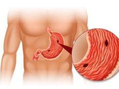 Язва желудка в период обострения: симптоматика и лечение
