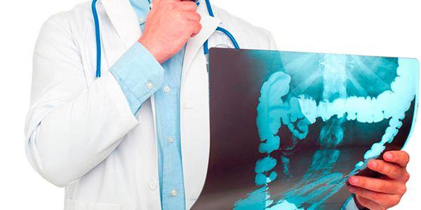 Как лечить острую анальную трещину