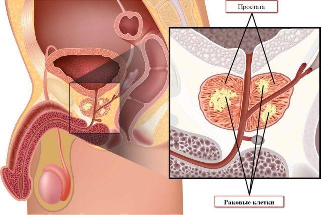 По завершению курса лечения онкологические клетки гибнут, а рост новообразования прекращается