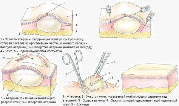 udalenie-ateromy-hirurgicheskim-putem