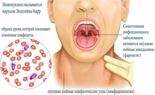 сколько держится температура при мононуклеозе у детей