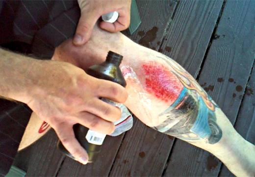 обработка ноги перекисью водорода