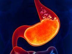 Пептический рефлюкс эзофагит: признаки и лечение заболевания