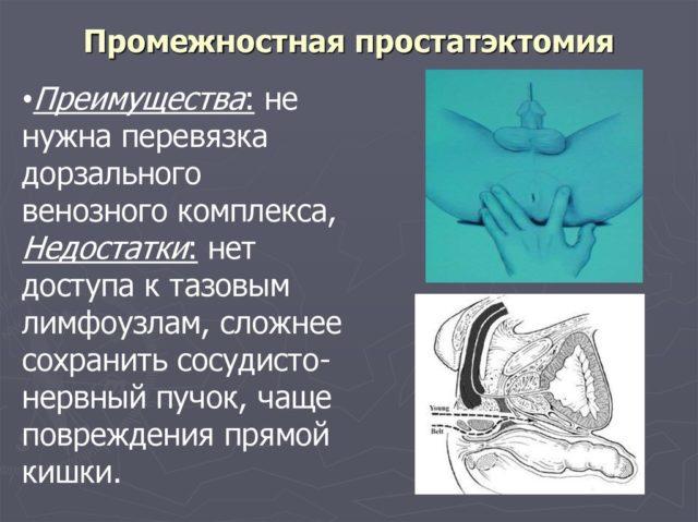 Помимо этого, набирает популярность такой вид оперативного доступа, как малоинвазивная лапароскопическая простатэктомия