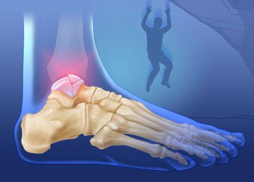 Перелом таранной кости стопы
