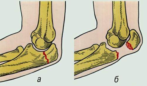 Виды и симптомы перелома локтевого сустава