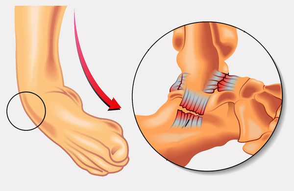 Вывих ноги