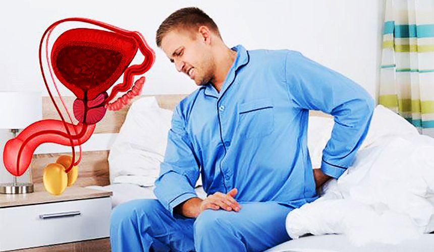 Боли предстательной железы